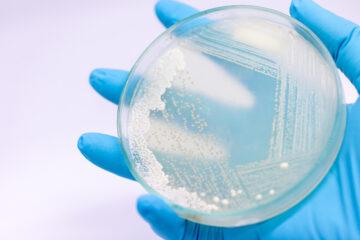 Yeast in Petri Dish - COVID-19 vaccine